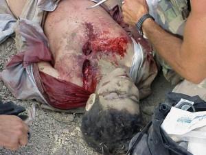 Omar_Khadr_getting_battlefield_first_aid